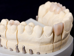 【当院の特徴2】仮の歯を必ず作り、シミュレーションを行います