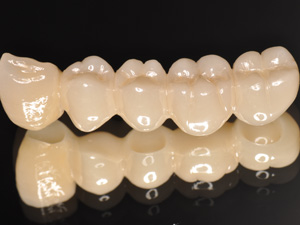 【当院の特徴3】歯科技工士と密な連携