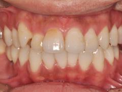 ホワイトニング症例602