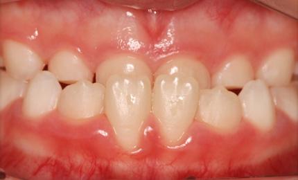 【矯正歯科治療】歯並びでお悩みの方へ