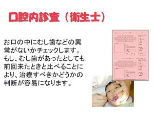 口腔内診査(衛生士)
