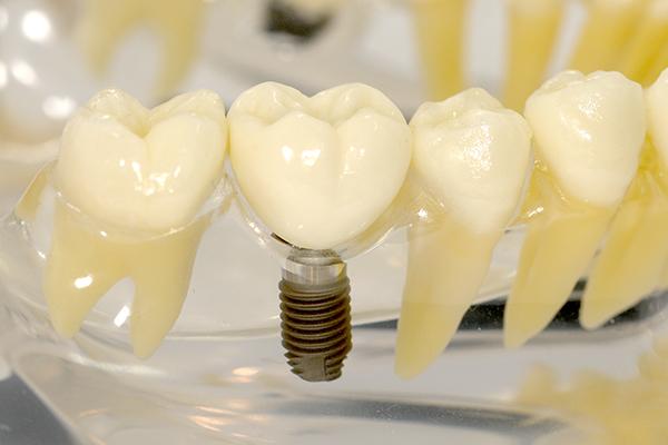 implant-thumb